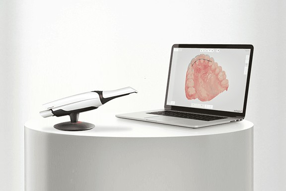 Digital-Impression-Scanning